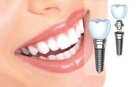 v-kakix-sluchayax-mozhet-ponadobitsya-implantaciya-zubov